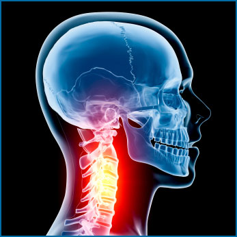 Neck Pain Relief Woodland Hills Chiropractor