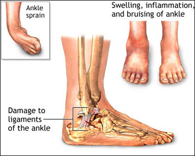 Treating Sprained Ankles - Woodland Hills Chiropractor