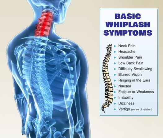 Basic Whiplash Symptoms